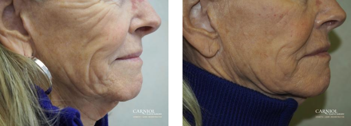 This lady who has just turned 60 was unhappy with her loose facial skin. We discussed the possibility of a full facelift. Instead she had a nonsurgical Quicklift including Juvederm Voluma ™ She is very pleased with her dramatic improvement from this nonsurgical procedure.